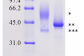 Image 1: The combined recombinant cathepsin L1H and cathepsin B3 vaccine against Fasciola gigantica